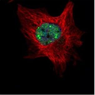 Immunocytochemistry/ Immunofluorescence - Anti-TOE1 antibody (ab151600)