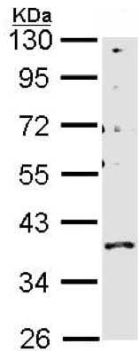 Western blot - Anti-GPCR GPR146 antibody (ab151626)