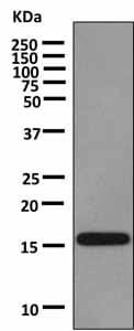 Western blot - Anti-VAMP1 antibody [EPR7325(2)] (ab151712)