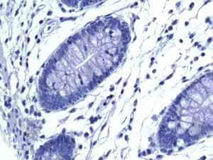 Immunohistochemistry (Formalin/PFA-fixed paraffin-embedded sections) - Anti-VAMP1 antibody [EPR7325(2)] (ab151712)