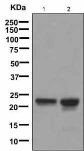 Western blot - Anti-beta Crystallin A3 antibody [EPR9585] (ab151713)