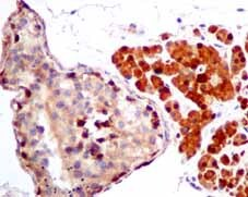 Immunohistochemistry (Formalin/PFA-fixed paraffin-embedded sections) - Anti-TXNRD1 antibody [EPR10204(B)] (ab151716)