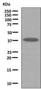 Western blot - Anti-ANKRD2 antibody [EPR10731(B)] (ab151718)
