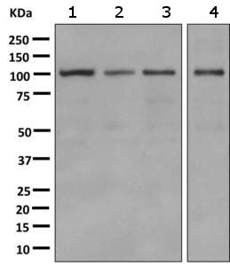Western blot - Anti-Alpha1-adaptin antibody [EPR7572] (ab151720)