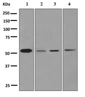 Western blot - Anti-Cytochrome P450 1A2  antibody [EPR6138(2)] (ab151728)
