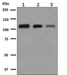 Western blot - Anti-AASS antibody [EPR9144] (ab151737)