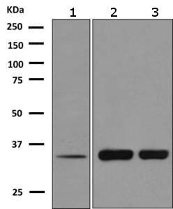 Western blot - Anti-CLEC2D antibody [EPR6584(2)] (ab151738)