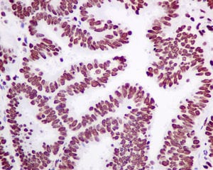 Immunohistochemistry (Formalin/PFA-fixed paraffin-embedded sections) - Anti-Matrin 3 antibody [EPR10634(B)] (ab151739)