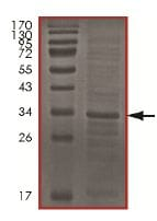 SDS-PAGE - Cdc34 protein (His tag) (ab151828)
