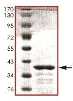SDS-PAGE - Tau protein (ab151872)