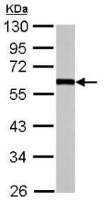 Western blot - Anti-EFEMP1 antibody (ab151976)