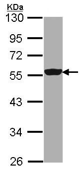 Western blot - Anti-DDX6 antibody (ab151984)