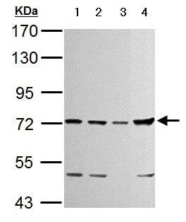 Western blot - Anti-TTC39B antibody (ab151990)