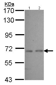 Western blot - Anti-Cytochrome p450 2J2 antibody (ab151996)