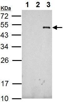 Western blot - Anti-RFP antibody (ab152123)