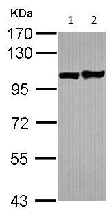 Western blot - Anti-Eph receptor A1 antibody (ab152145)