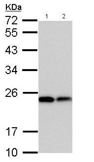 Western blot - Anti-Dihydrofolate reductase (DHFR) antibody (ab152159)