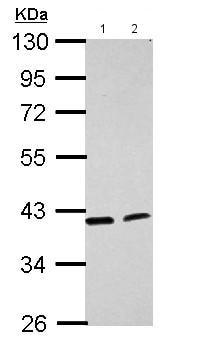 Western blot - Anti-ACADL antibody - N-terminal (ab152160)
