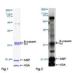 Functional Studies - DYRK2 protein (Active) (ab152869)