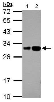 Western blot - Anti-RILPL2 antibody (ab153717)