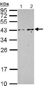 Western blot - Anti-PIP5KL1 antibody (ab153727)