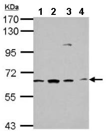 Western blot - Anti-GGA1 antibody (ab153799)