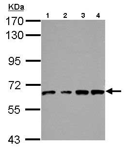 Western blot - Anti-VPS33B antibody (ab153844)