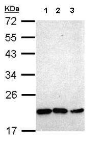 Western blot - Anti-NKX2.8 antibody (ab153855)