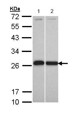 Western blot - Anti-GST3 / GST pi antibody (ab153949)