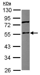 Western blot - Anti-Coronin 3 antibody (ab153954)