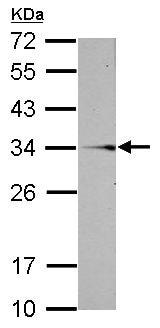 Western blot - Anti-SLC25A6 antibody (ab153956)