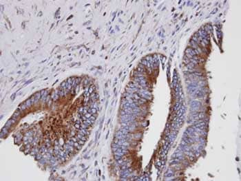 Immunohistochemistry (Formalin/PFA-fixed paraffin-embedded sections) - Anti-GIT1 antibody (ab153958)