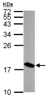 Western blot - Anti-LSM4 antibody (ab153959)