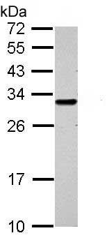 Western blot - Anti-GCLM antibody (ab153967)
