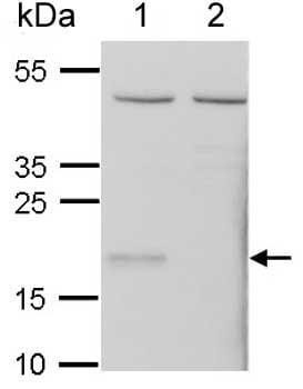 Western blot - Anti-Glutathione Peroxidase 7 antibody (ab153969)