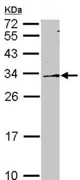 Western blot - Anti-DDAH2 antibody (ab153984)