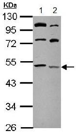 Western blot - Anti-LCLAT1 antibody (ab153987)