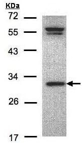 Western blot - Anti-ORC6 antibody - C-terminal (ab153993)