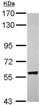 Western blot - Anti-ZCCHC4 antibody (ab154002)