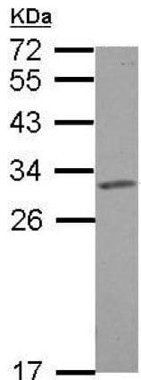 Western blot - Anti-SLC25A6 antibody (ab154007)