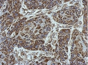 Immunohistochemistry (Formalin/PFA-fixed paraffin-embedded sections) - Anti-SLC25A6 antibody (ab154007)