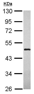 Western blot - Anti-LYPLA3 antibody (ab154012)