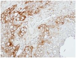 Immunohistochemistry (Formalin/PFA-fixed paraffin-embedded sections) - Anti-ZNF346 antibody (ab154031)