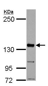 Western blot - Anti-CYFIP1 antibody - N-terminal (ab154045)