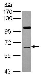 Western blot - Anti-MADM antibody (ab154048)
