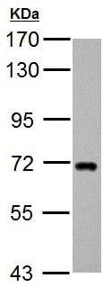 Western blot - Anti-ZDHHC17 antibody (ab154054)