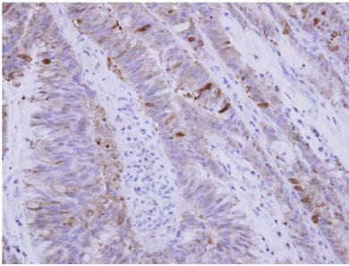 Immunohistochemistry (Formalin/PFA-fixed paraffin-embedded sections) - Anti-SNX15 antibody (ab154062)