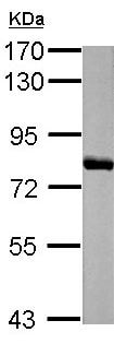 Western blot - Anti-Histidase antibody (ab154063)