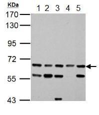Western blot - Anti-ACSL6 antibody (ab154094)