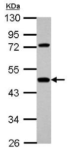 Western blot - Anti-Hemopexin antibody (ab154153)